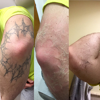 Gallery | FadeAway Ink | Tattoo Removal & Lightening | Staten Island, NY