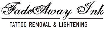 FadeAway Ink | Tattoo Removal & Lightening